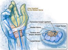 Numbness pattern of Carpal Tunnel Syndrome