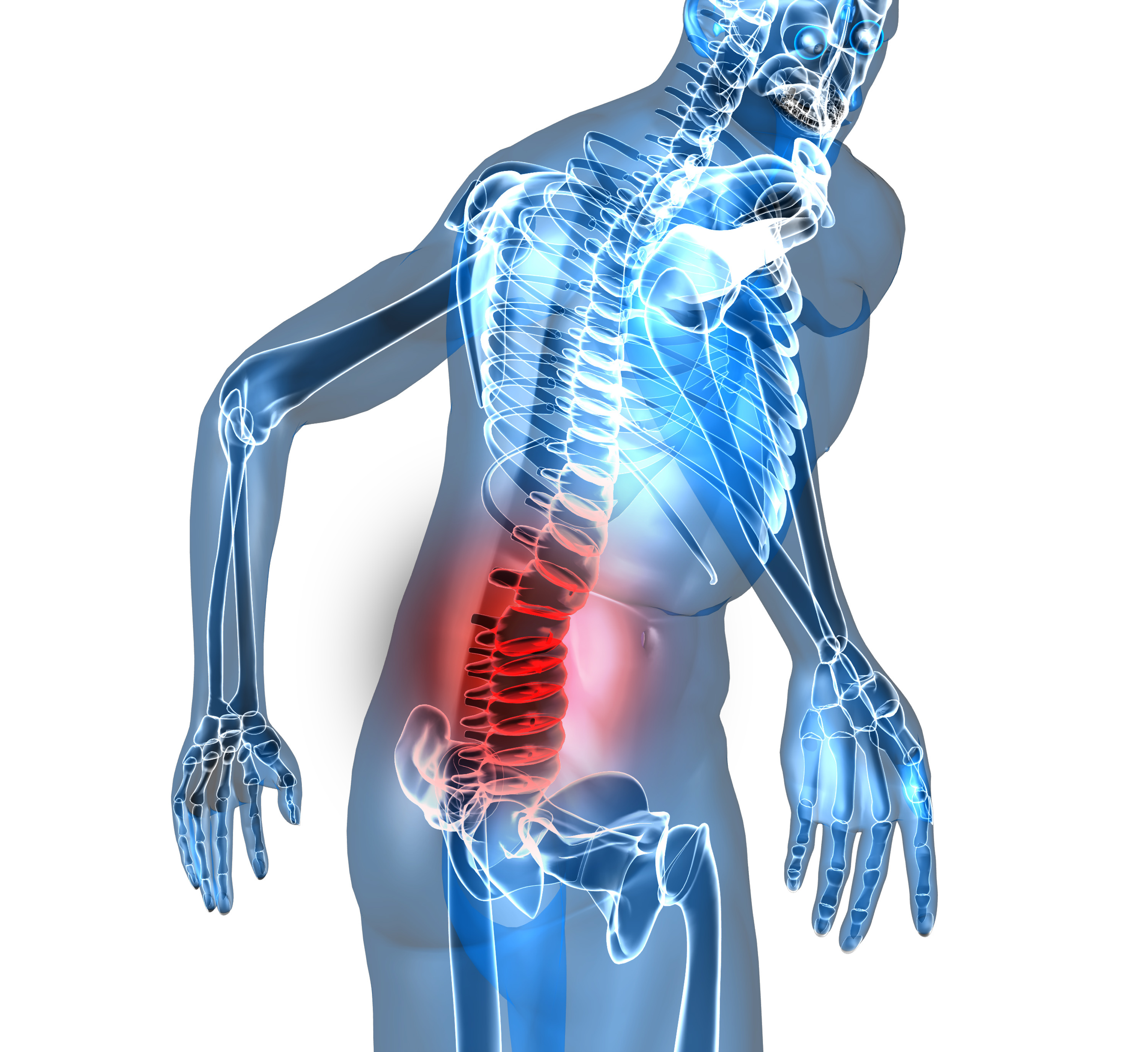 5 Common Causes Of Low Back Pain Dr Martin Schmaltz